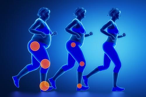 体重増加 関節痛