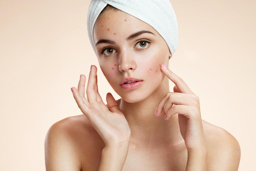 顎ニキビって簡単に治せるのア?丁寧なスキンケアをしても乾燥肌でもニキビは出来るんです!