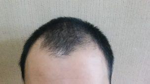 AGA(男性型脱毛症)の症状について